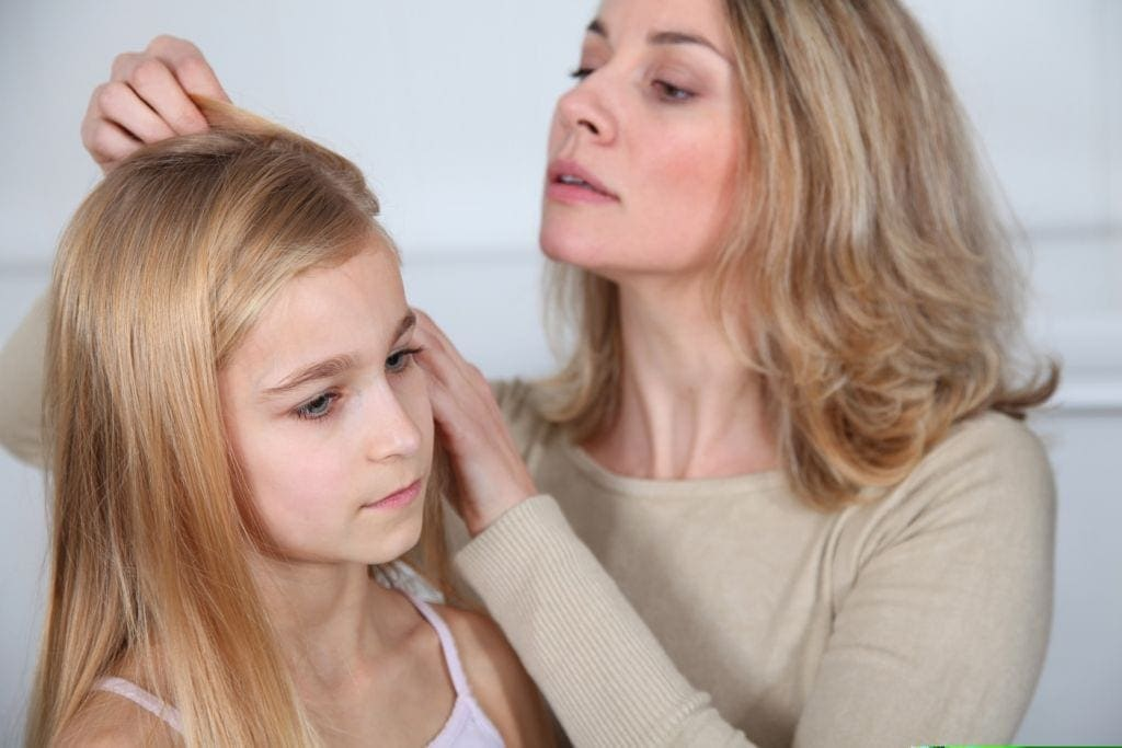 head lice treatments for kids