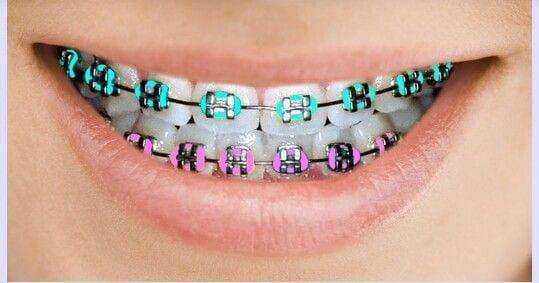 child needs braces