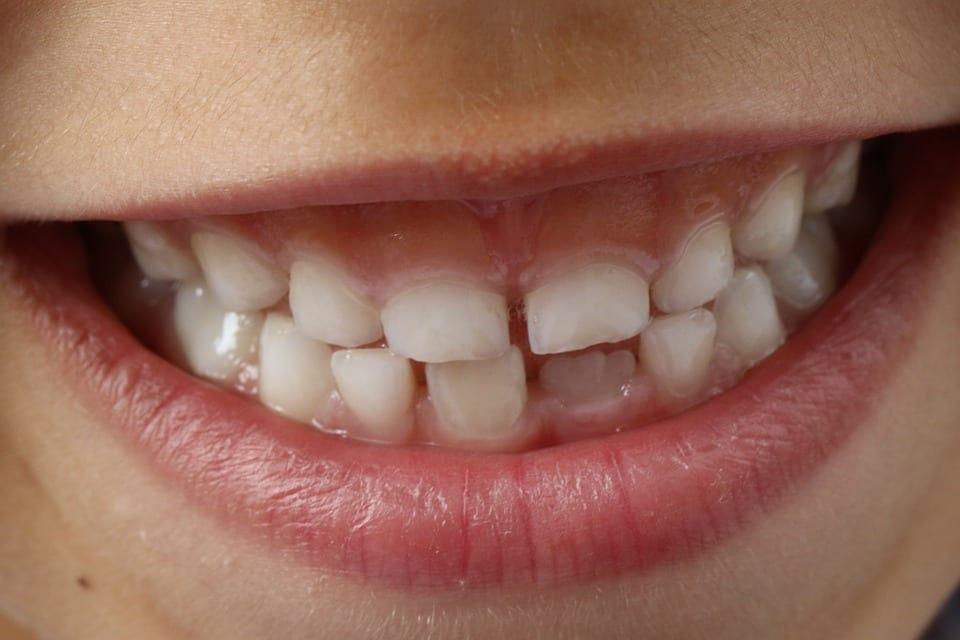 Orthodontist Gold Coast